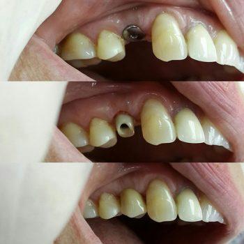 Коронка 14 зуба на импланте из диоксида циркония на циркониевом аббатменте.