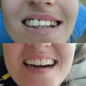 Верх - диоксид циркония на имплантах, после ортодонтии нижней челюсти.