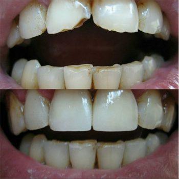 Реставрация 11,21 зубов фотополимером Filter ultimate