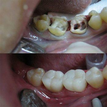 Реставрация 45,46,47,48 зубов фотополимером Filter ultimate