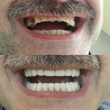 реконструкция зубного ряда коронками E.Max