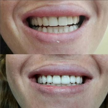 Виниры E.Max, без опиливания зубов