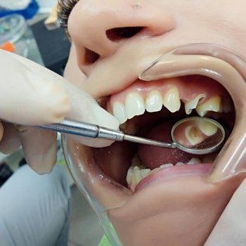 stomatologia-v-odesse-e-max